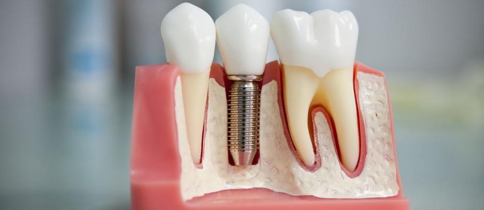 Наращивание зубов на штифт