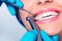 Микроабразия как один из передовых методов современной стоматологии